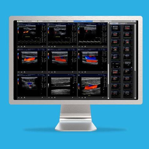 software de visualización / para ecografía / para exploraciones obstétricas / para historias clínicas