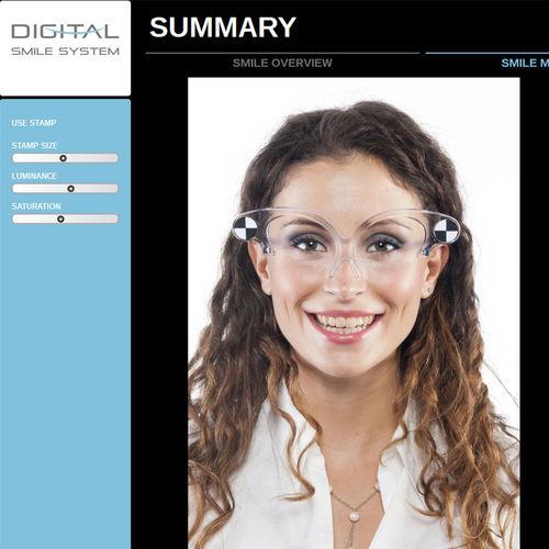 software de diseño digital de la sonrisa / para odontología / para odontología / automatizado