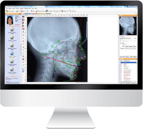 software de análisis cefalométrico / de gestión / de diagnóstico / para ortodoncia
