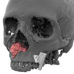 plantilla de resección para la reconstrucción maxilofacial