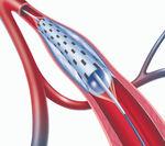 catéter ATP / arteria subpoplítea / arteria femoral / arteria ilíaca