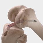 prótesis de ligamento ligamento cruzado posterior / ligamento cruzado anterior / sintética