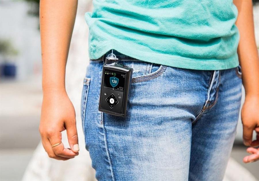 ensayos de medtronic diabetes sobre el páncreas artificial