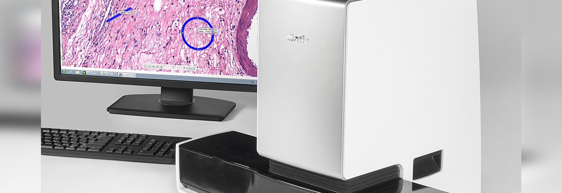 Los lanzamientos de los microscopios de Motic Uno-chascan el explorador de la diapositiva de Digitaces