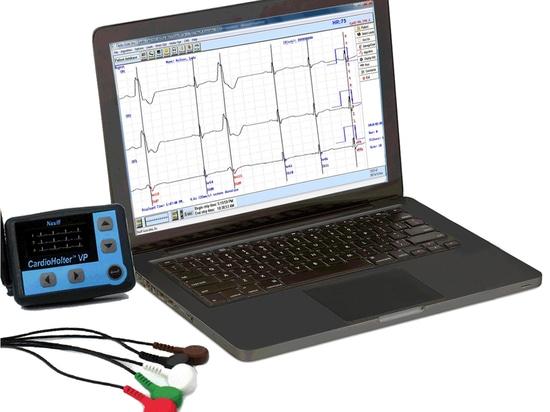 ¿Cómo una telemetría de Holter Monitoring System Facilitates Cardiac?