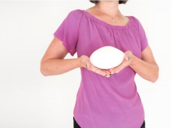 Prótesis mamarias impresas en 3D