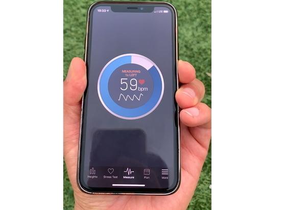La aplicación para Smartphone y el aprendizaje profundo ayudan a detectar la diabetes