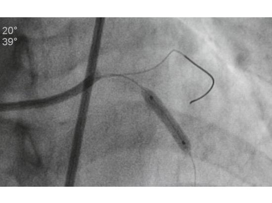 Tema del mes de agosto de 2021: Una mirada al sistema cardiovascular: Posibilidades de la imagen médica